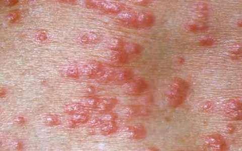 Does Dry Skin Cause Itching and Bumps