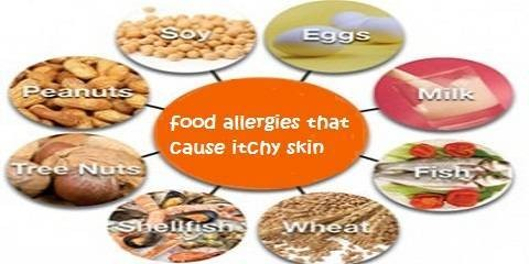 Food Allergies Can Occur On Any Food