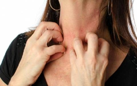 What Diseases Cause Itchy Skin