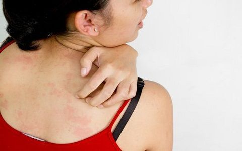 Treatment for Itchy Skin