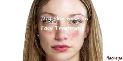 Dry Skin Rash on Face Treatment