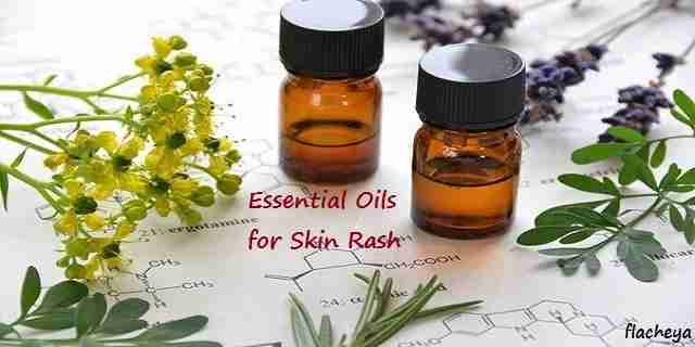 Essential Oils for Skin Rash