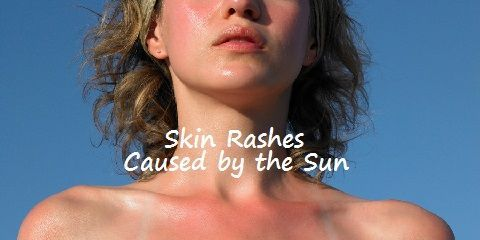Skin Rashes Caused by the Sun