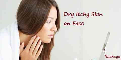 Dry Itchy Skin On Face