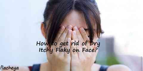 How to get rid of Dry Itchy Flaky on Face