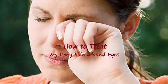 What To Use For Dry Itchy Skin Around Eyes